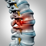 Degenerative Disc Disease: Debunking Myths