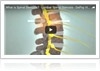 A Look at Lumbar Spinal Stenosis