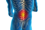 Early physical therapy benefits low-back pain patients