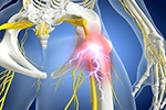 Neuroinflammation seen in spinal cord, nerve roots of patients with chronic sciatica