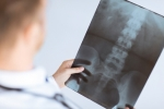 Should You Consider Revision Spine Surgery?