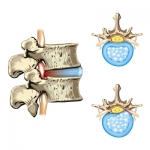 What Are Some of the Most Common Reasons for Revision Spine Surgery?