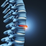 What Complications Are Associated with Herniated Discs?