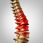 What Conditions Reduce the Width of Your Spinal Column
