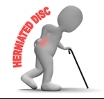 What You Can Do to Help Prevent Herniated Discs